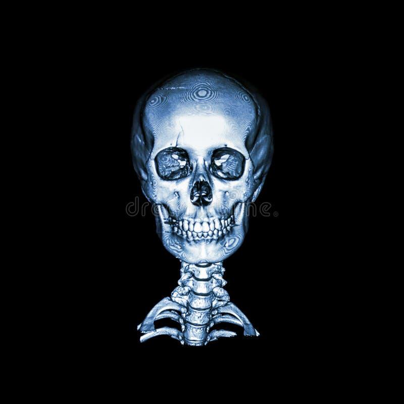 Varredura do CT com imagem 3D do crânio humano normal e da espinha cervical anterior - vista traseiro AP imagens de stock royalty free
