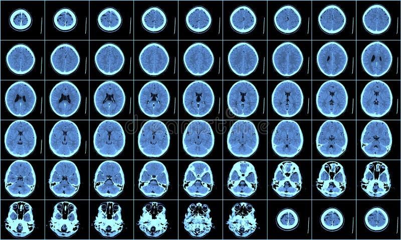 Varredura do CT do cérebro fotografia de stock royalty free