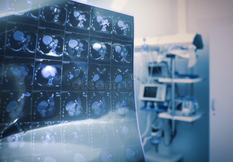 Varredura do CT do paciente imagens de stock royalty free