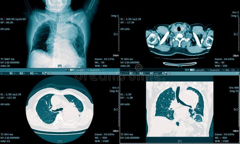 Varredura do CT do fundo médico da caixa fotos de stock