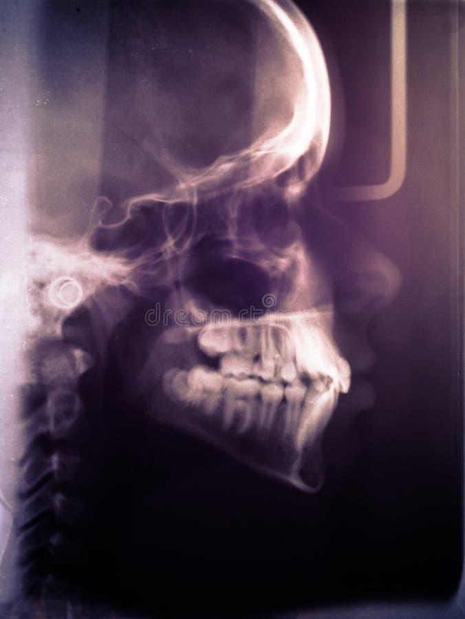 Varredura humana do crânio imagens de stock