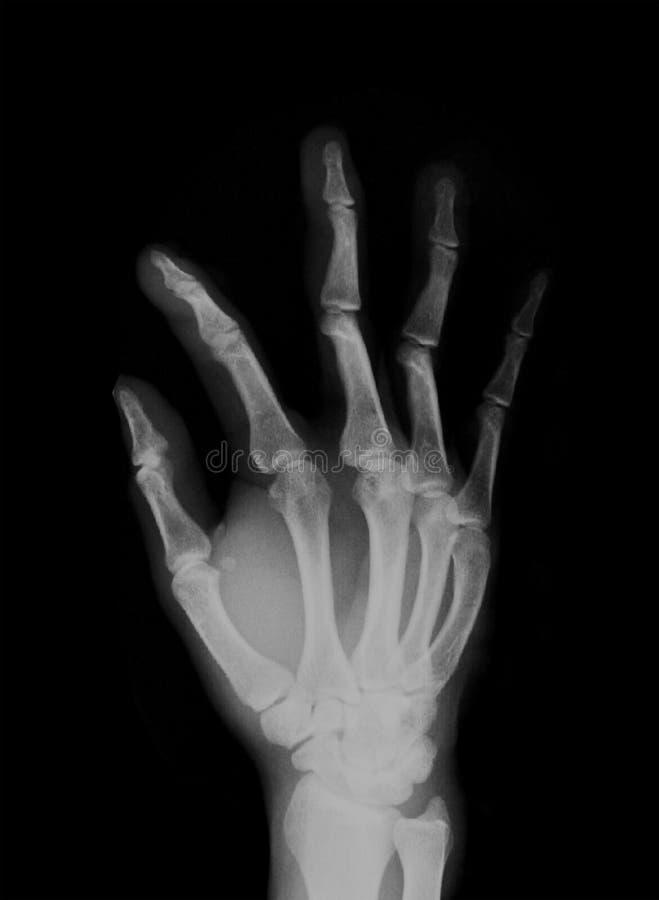 Varredura negativa do raio X humano da mão imagens de stock
