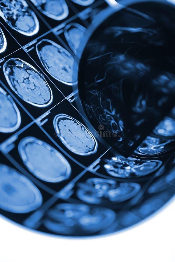 Varredura paciente da cabeça do ` s na caixa leve no hospital foto de stock royalty free