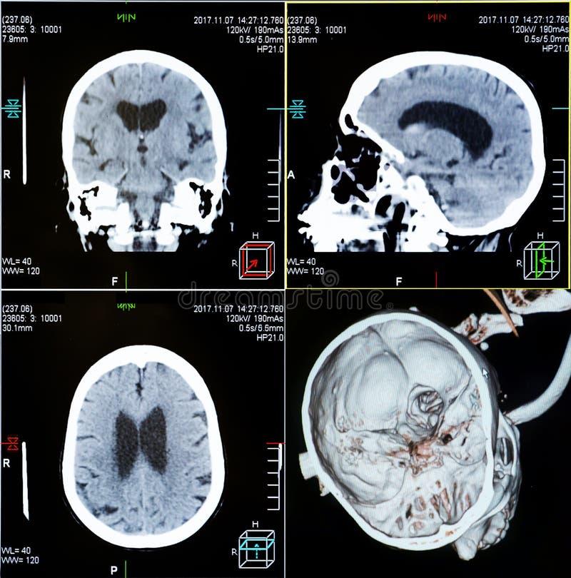 Varreduras do CT da cabeça humana fotos de stock