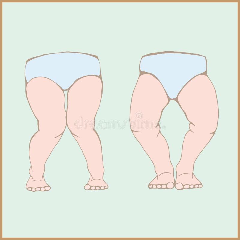 Varum del Genu, valgum del genu - una deformità fisica delle gambe illustrazione di stock