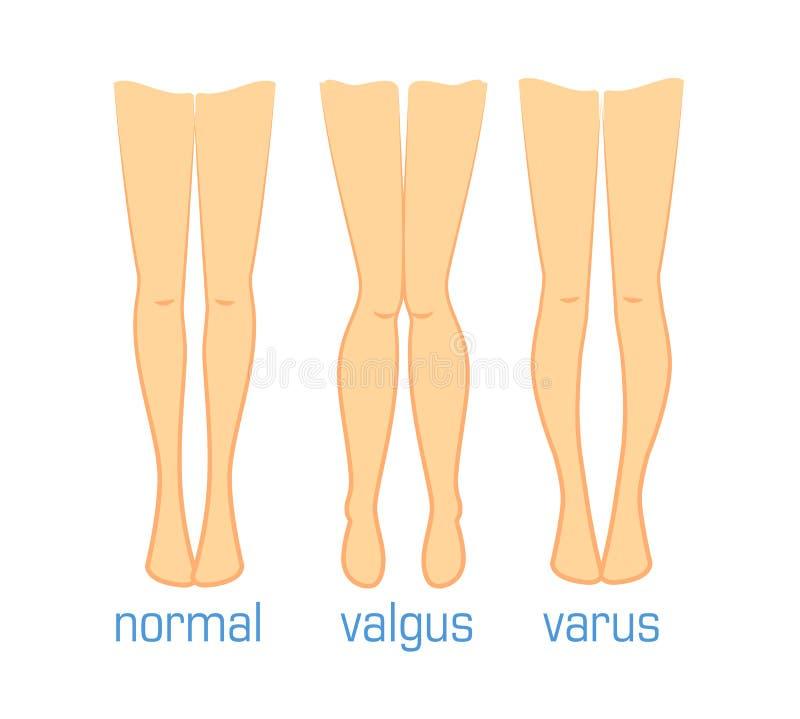 Varus de Valgus y normal libre illustration