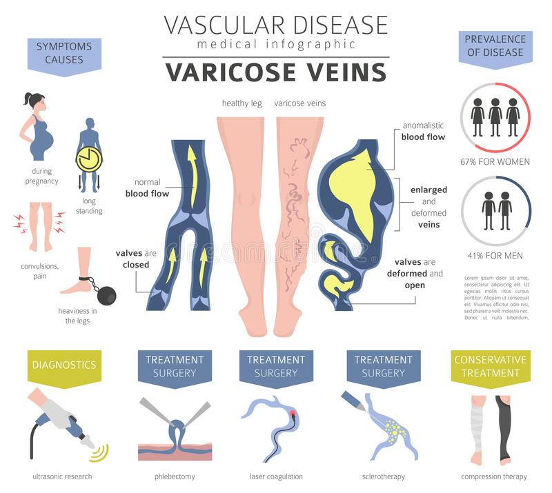 Vascular diseases. Varicose veins symptoms, treatment icon set. stock illustration