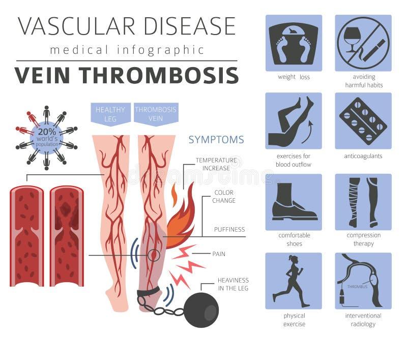 Vascular diseases. Vein thrombosis symptoms, treatment icon set. Medical infographic design. Vector illustration vector illustration