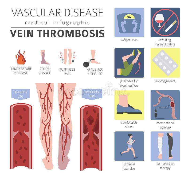 Vascular diseases. Vein thrombosis symptoms, treatment icon set. Medical infographic design. Vector illustration royalty free illustration