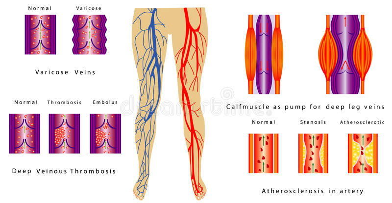 Vascular System Legs. Atherosclerosis in artery. Deep venous thrombosis. Varicose Veins. Calf muscle as pump for deep leg veins. Chronic venous insufficiency vector illustration