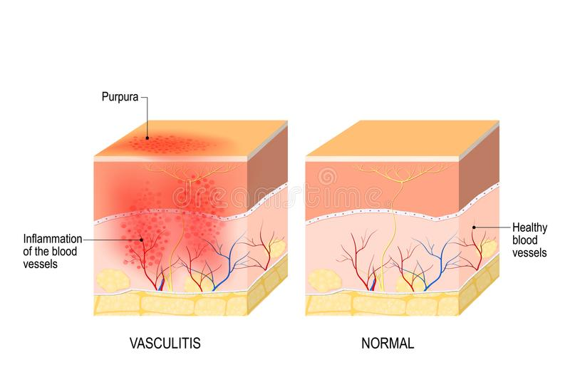 Vasculitis. Cross section of the human skin with vasculitis stock illustration