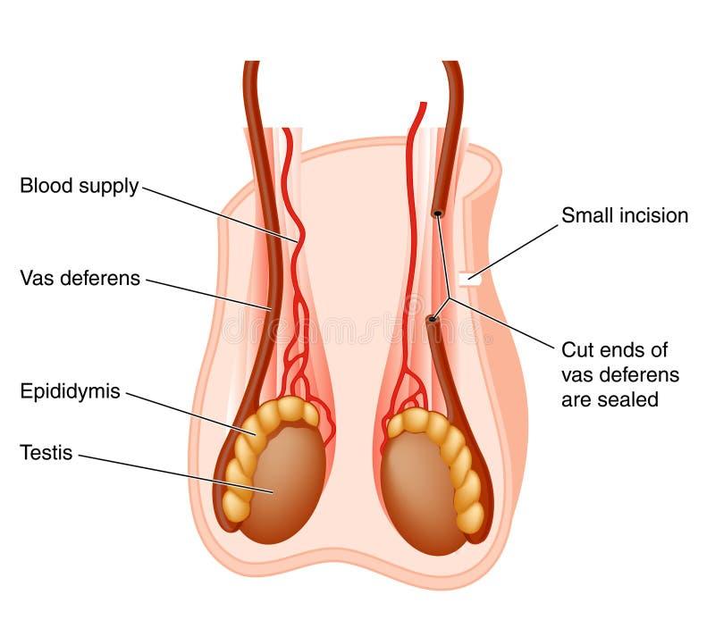 Vasectomy operation royalty free illustration