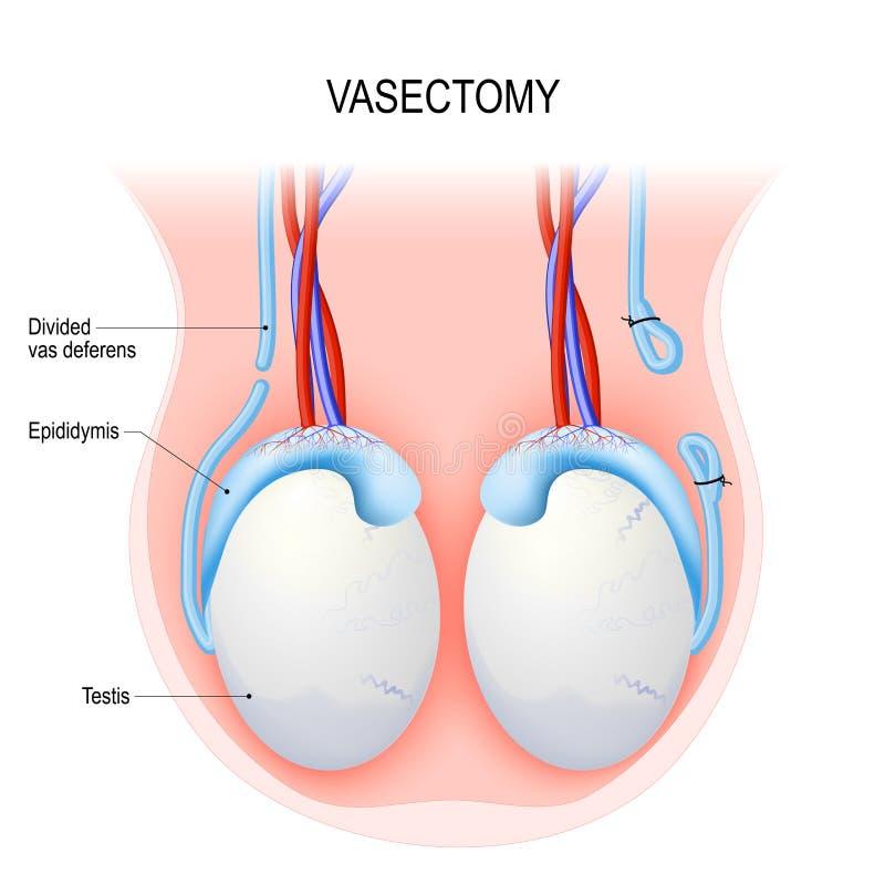 vasektomi Öppen metod och ligating av att sy ihop royaltyfri illustrationer