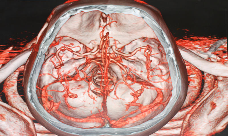 Vasographie CT lizenzfreie stockfotografie