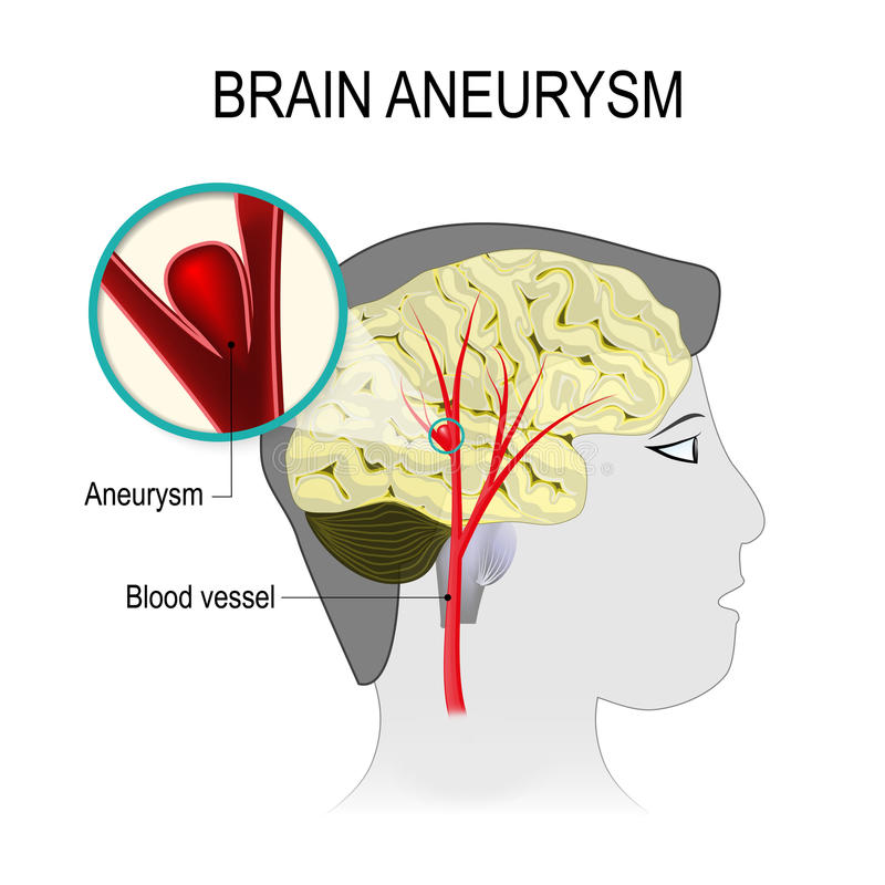 Vasos sanguíneos no cérebro com aneurisma ilustração royalty free