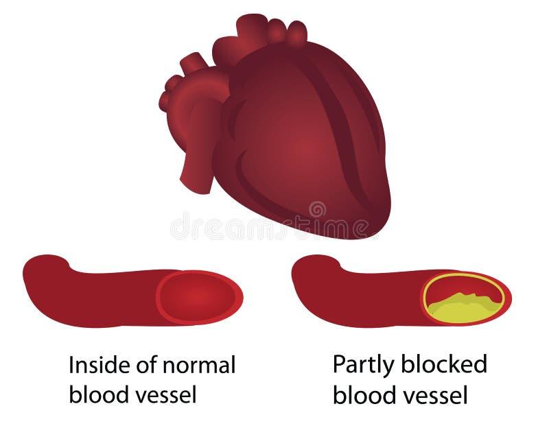 Vasos sanguíneos saudáveis e obstruídos ilustração do vetor