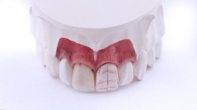 Vaxa tand- kronor för modelltänder på modellen, fri metall - den främre sikten Keramiska främre fanér som isoleras på svart bakgr arkivbilder