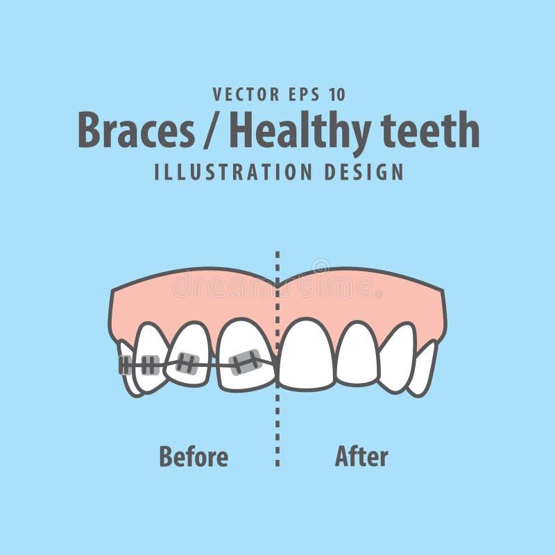 Vecteur Accolade-sain d'illustration de dents sur le fond bleu repaire illustration de vecteur