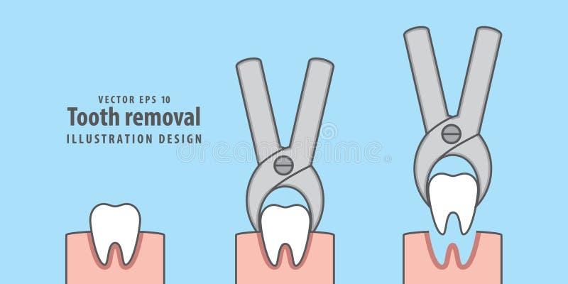Vecteur d'illustration de retrait de dent sur le fond bleu dentaire illustration libre de droits