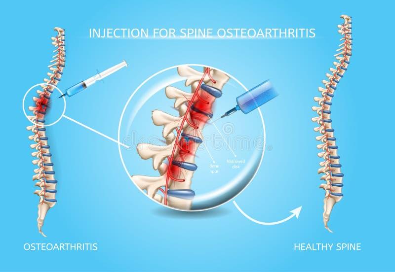 Vecteur de traitement médical d'ostéoarthrite d'épine illustration libre de droits