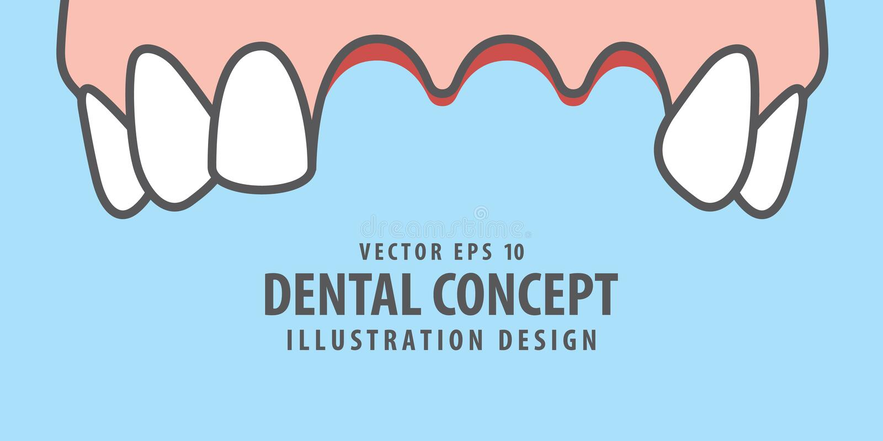 Vecteur perdu supérieur d'illustration de dents de bannière sur le fond bleu illustration stock