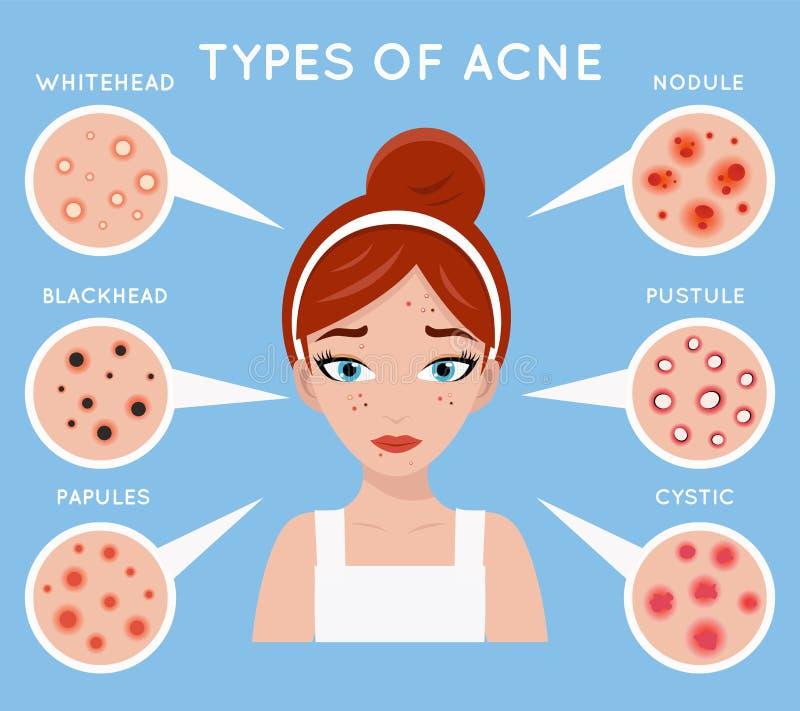 Vecteur principal de conception de soin de peau de femmes d'acné de visage de bouton de problème de beauté de cosmétiques fille c illustration stock
