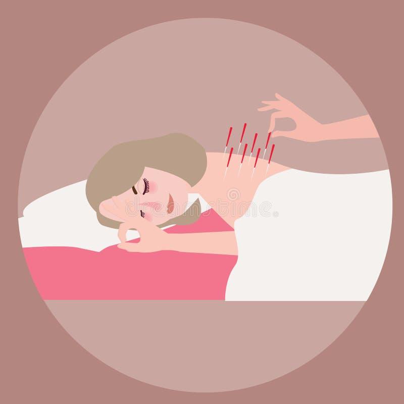 Vector alternative Behandlungsnadel der Akupunkturfrauentherapie an ihr zurück Illustrationsebene vektor abbildung
