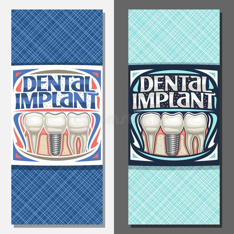 Vector banners for Dental Implant royalty free illustration
