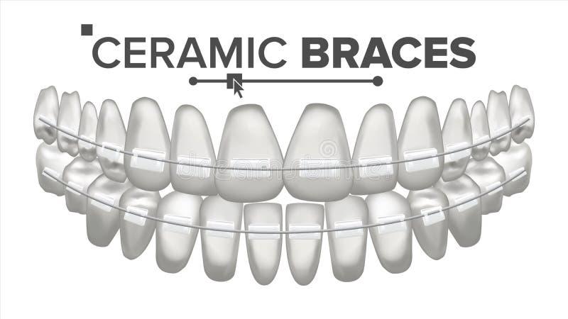Vector de cerámica de los apoyos Quijada humana Dentista, Orthodontist Poster Element ejemplo aislado realista 3D libre illustration