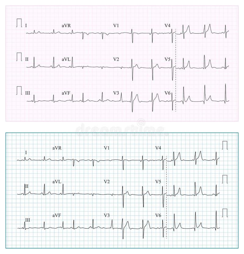 Vector de la carta del cardiograma del corazón Ritmo sano determinado del corazón, isquemia, infarto Latido del corazón de la vit stock de ilustración