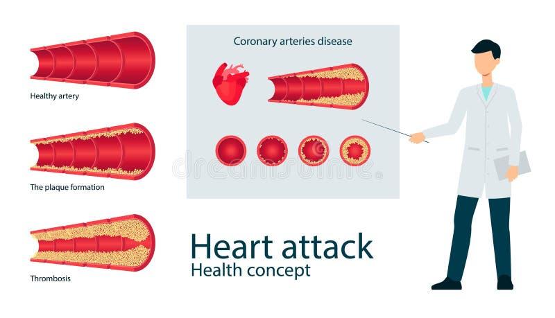 Vector de slagader throms vlakke reeks van de atheroscleroseader stock illustratie