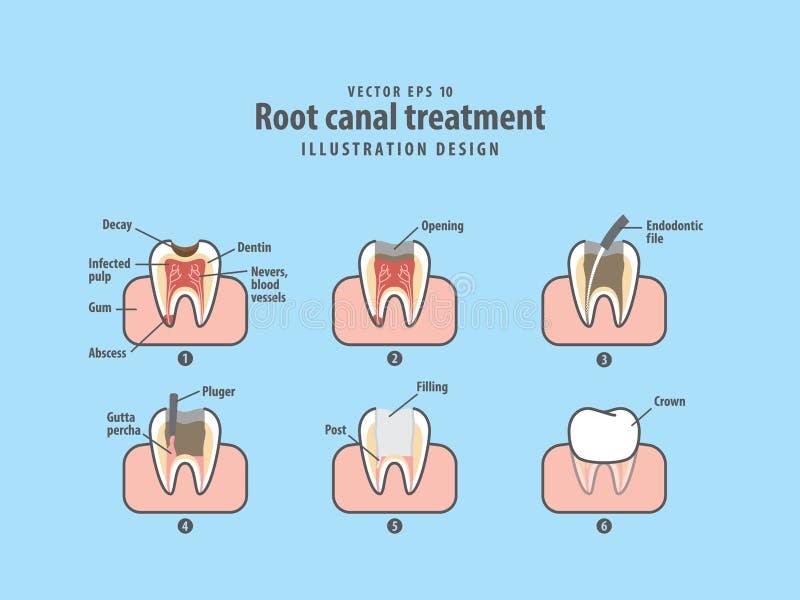 Vector del ejemplo del tratamiento de la endodoncia en fondo azul stock de ilustración
