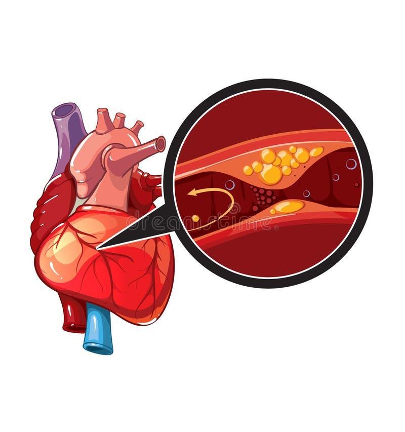 Vector del infarto del miocardio stock de ilustración