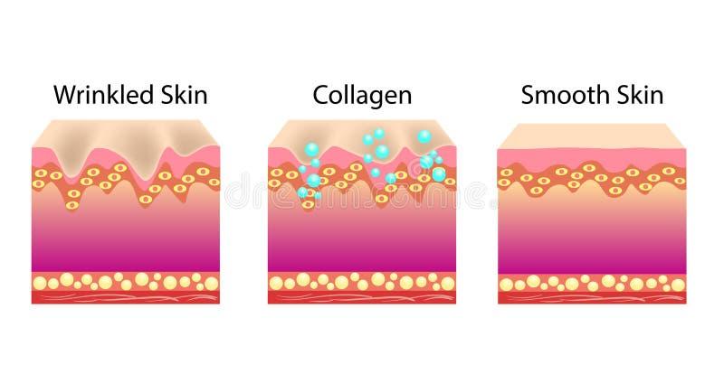 Vector el ejemplo con el proceso de conseguir la piel de la piel más joven con la ayuda del callogen libre illustration