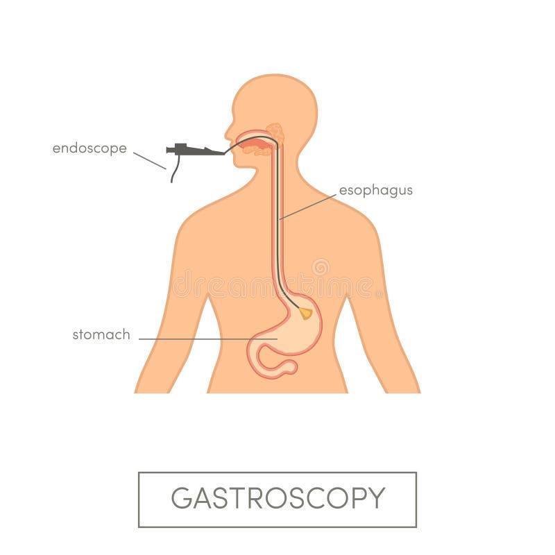 Vector gastroscopy concept. Caucasian woman getting endoscopic examination royalty free illustration