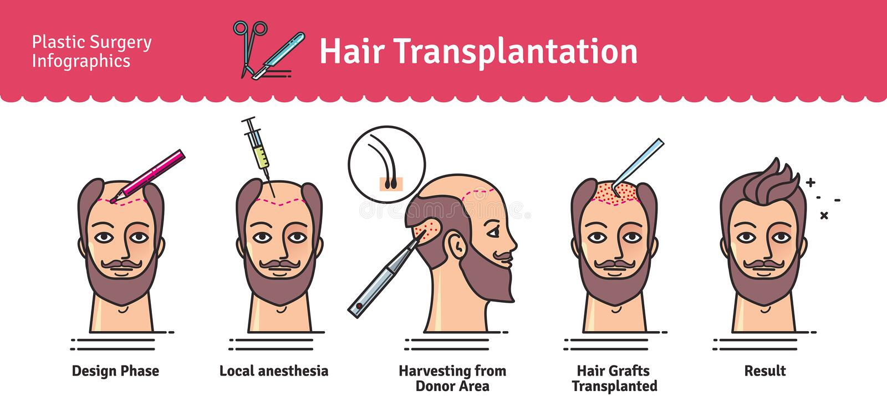 Vector Geïllustreerde reeks met de chirurgie van de haartransplantatie royalty-vrije stock foto