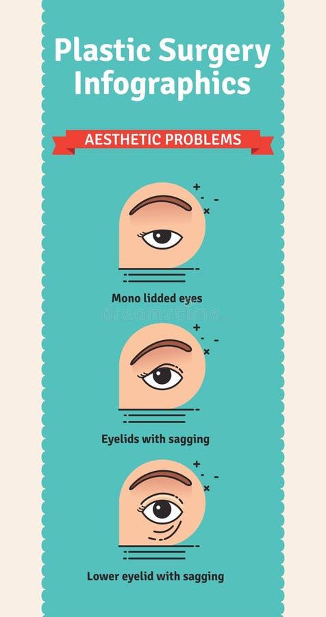 Vector Geïllustreerde reeks met esthetische problemen voor ooglidchirurgie royalty-vrije illustratie