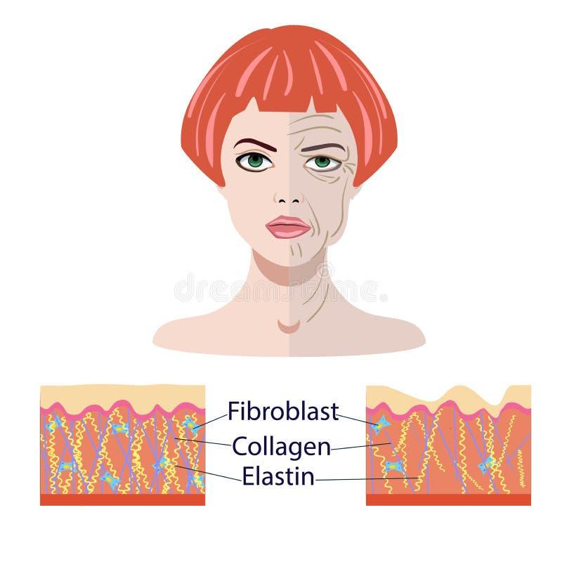 Vector Gesicht und zwei Arten Haut -, die gealtert werden und Junge für die medizinischen und cosmetological lokalisierten Illust vektor abbildung