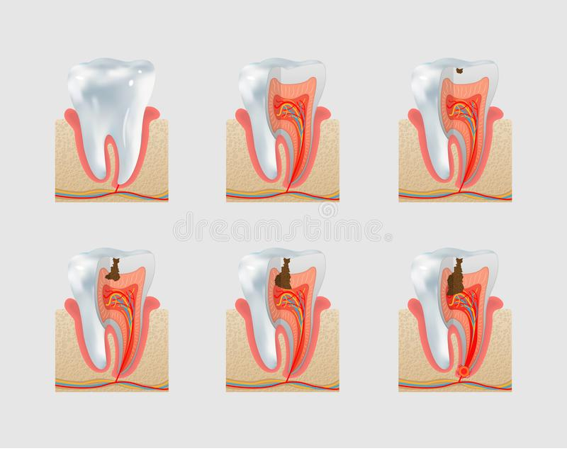 Vector healthy tooth and dental caries icon set. Healthy untreated tooth and dental caries or cavities icon set. Severity of tooth destruction vector illustration