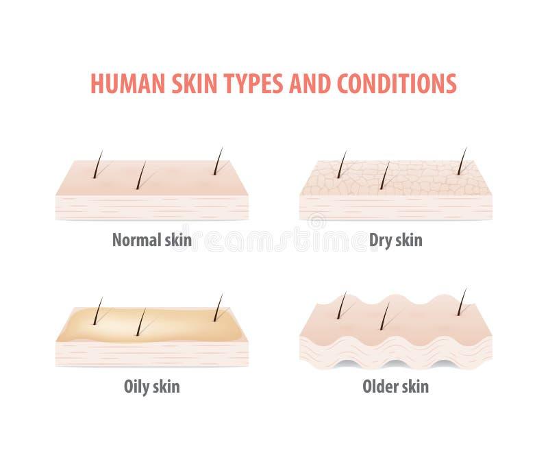Vector humano del ejemplo de los tipos y de las condiciones de la piel en el CCB blanco stock de ilustración