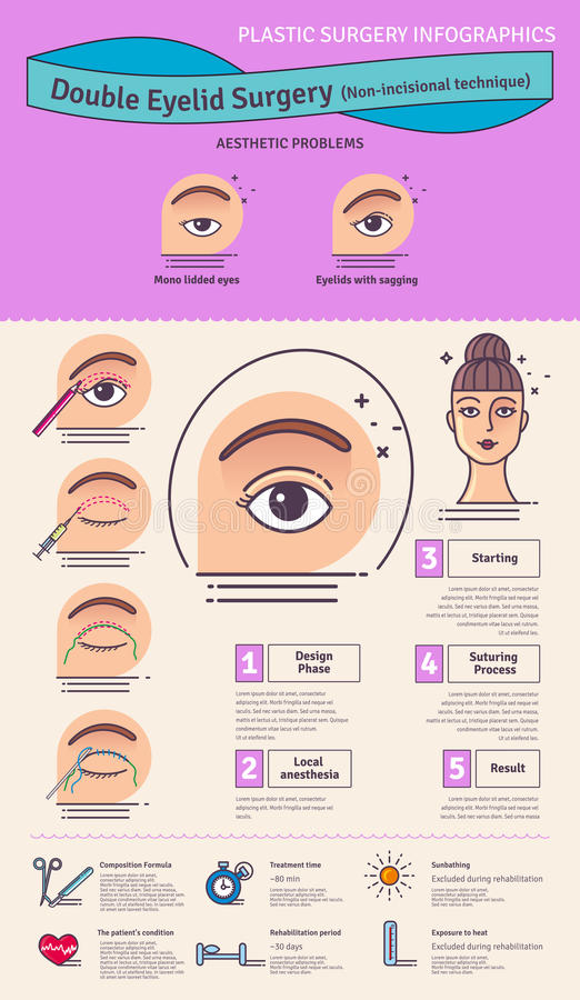 Eyelid Surgery Stock Illustrations – 189 Eyelid Surgery Stock