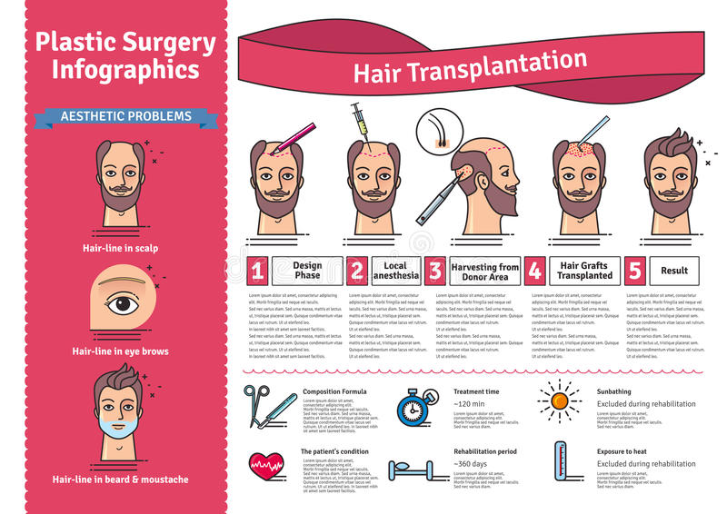 Vector Illustrated set with hair transplant surgery. Infographics with icons of plastic surgery procedures royalty free illustration