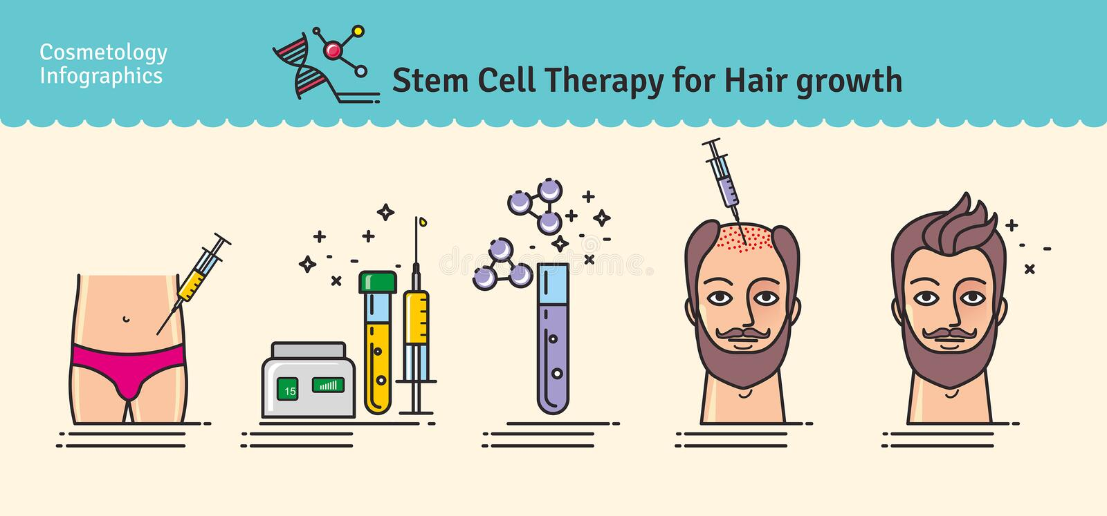 Vector Illustrated set with stem cell therapy for hair growth. Vector Illustrated set with cosmetology stem cell therapy for hair growth. Infographics with icons royalty free illustration