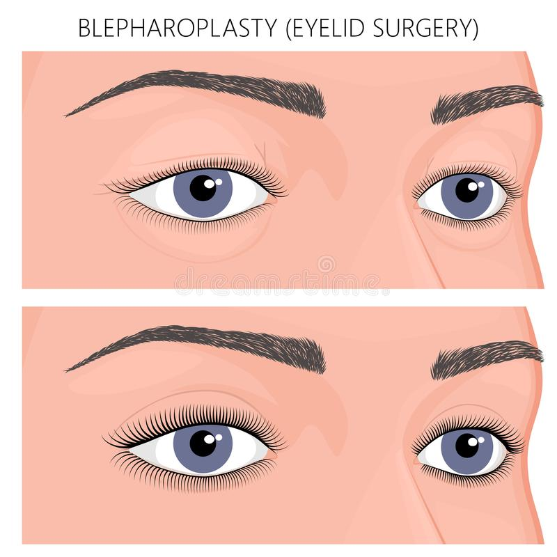 Plastic surgery_Blepharoplasty eyelid surgery. Vector illustration. Blepharoplasty, eyelid surgery in women before, after cosmetic plastic procedure. Close up stock illustration