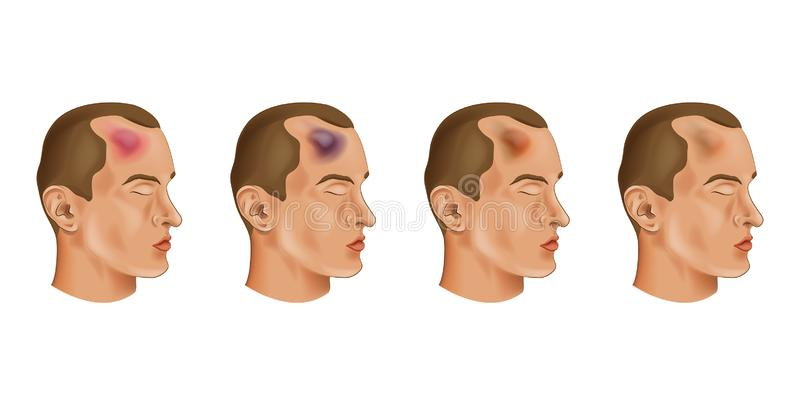 The bruise on his forehead stock illustration