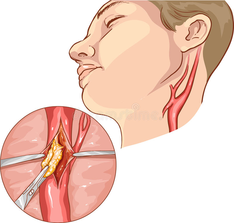 vector illustration of a Carotid Endarterectomy stock illustration
