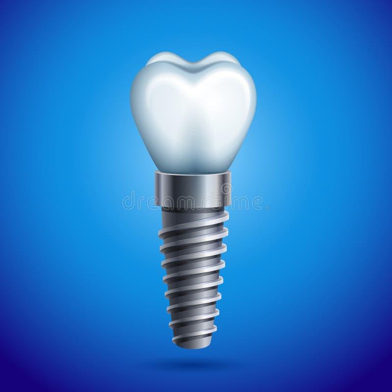 Dental implant royalty free illustration