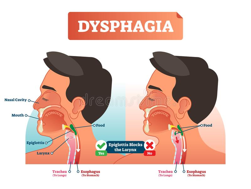 Vector illustration about dysphagia. Human scheme with nasal cavity, mouth, tongue, epiglottis, larynx, trachea and esophagus. Vector illustration about stock illustration