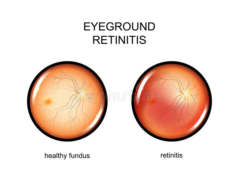 Eye, fundus. retinitis. Vector illustration of the eye fundus. retinitis stock illustration