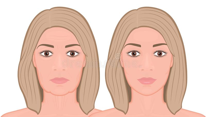 Face front_Front Face lift surgery stock illustration